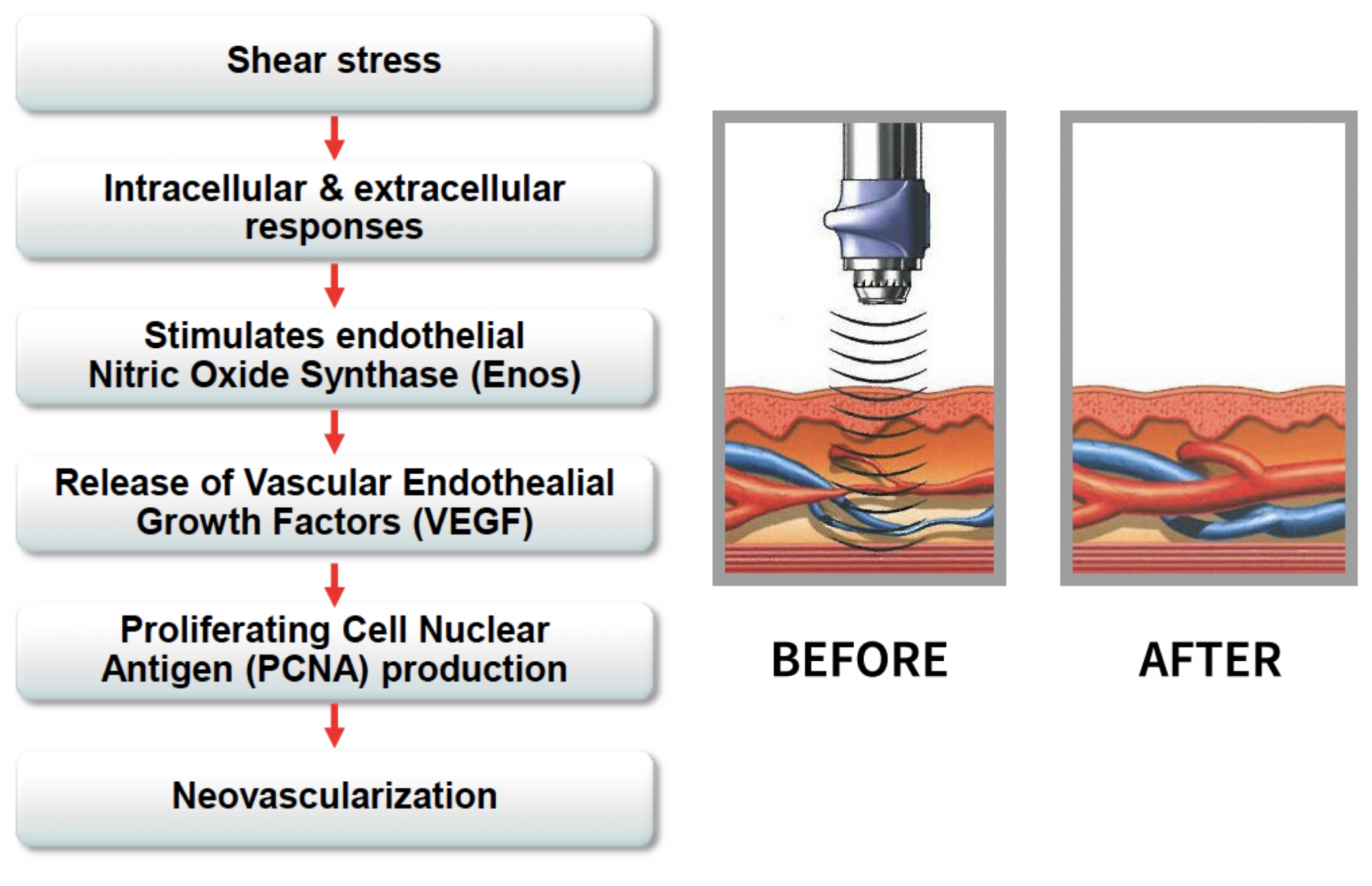 Sound Wave Therapy For Ed